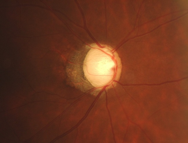 glaucoma4